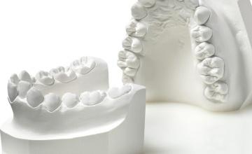 Analiza modela zuba