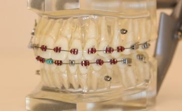 Kako ortodontsko lečenje može pomoći?