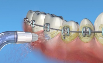 Maksimalana oralna higijena pacijenata u ortodontskom tretmanu