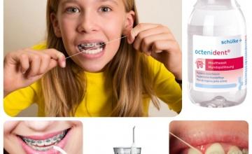 Održavanje oralne higijene tokom ortodontskog tretmana
