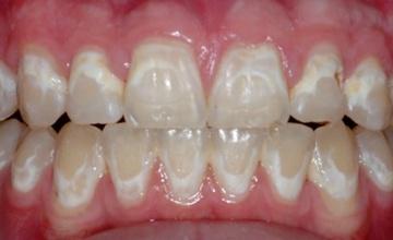 Posledice lošeg održavanja higijene tokom ortodontskog tretmana