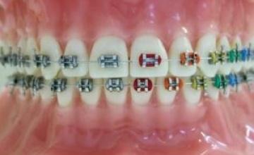 Različite mogućnosti ligiranja u ortodonciji