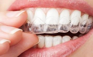 Sanacija zuba u retencionom periodu