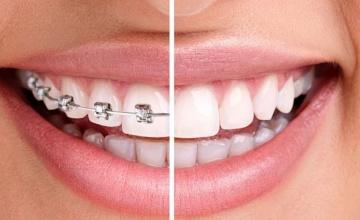Skidanje fiksnog ortodontskog aparata (fiksne proteze)