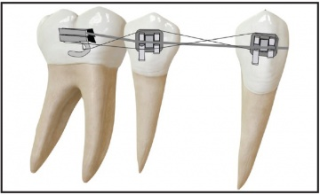 Uporište u ortodonciji